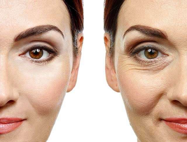 Should you get fillers or a face lift? | Femina in