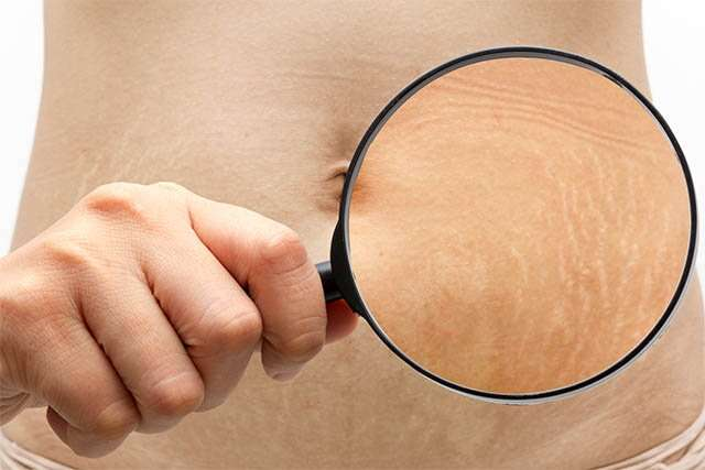 How To Get Rid Of Stretch Marks With Natural Home Remedies Femina In