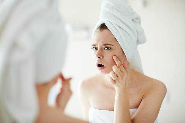 causes of acne or pimples