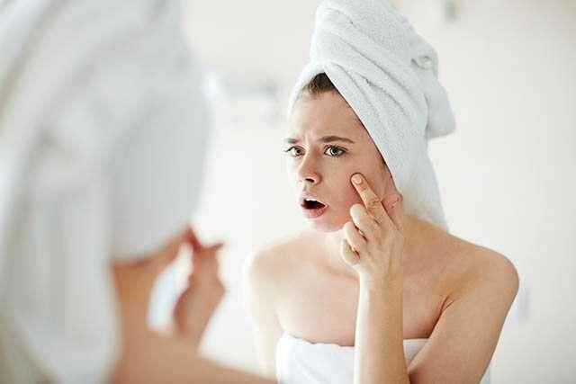 Do you have acne attacks