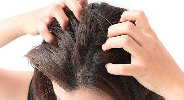 Itchy, scaly scalp can be a result of fatigue