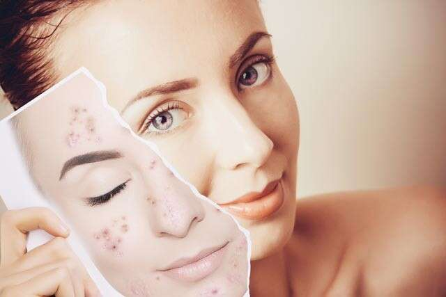 How To Remove Pimples Effectively | Femina.in
