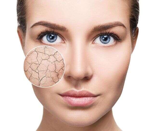 Skin Benefits Of Vitamin E Femina