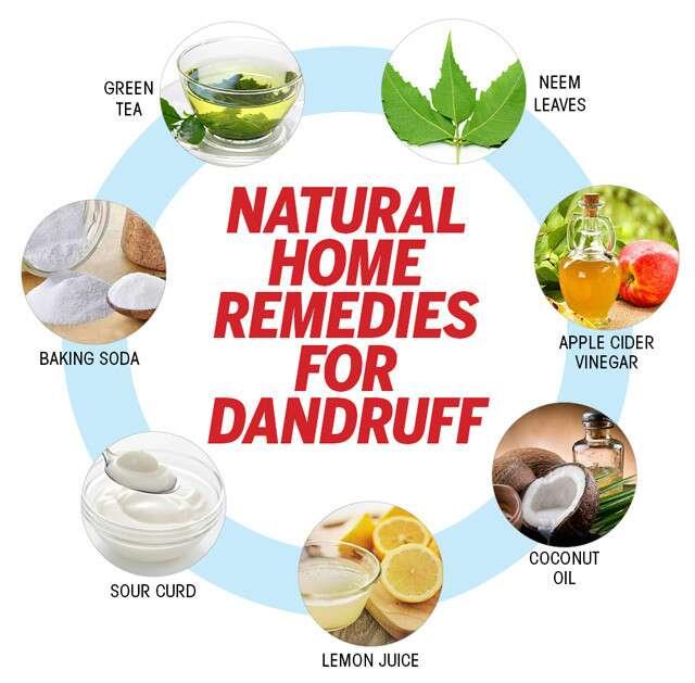 Home Remedies For Hair Care Tips For Dandruff Femina In