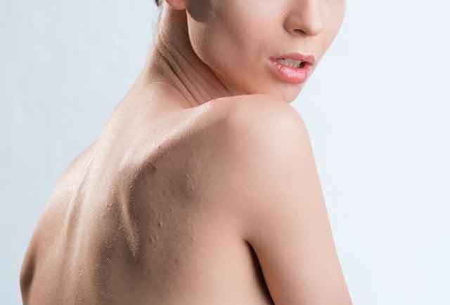 Try dandruff shampoo for body acne