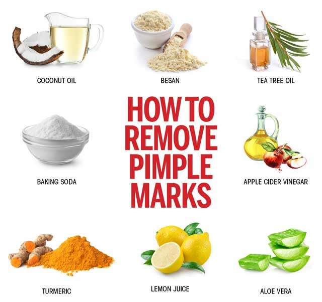 How To Remove Pimple Marks Effective Ways | Femina.in