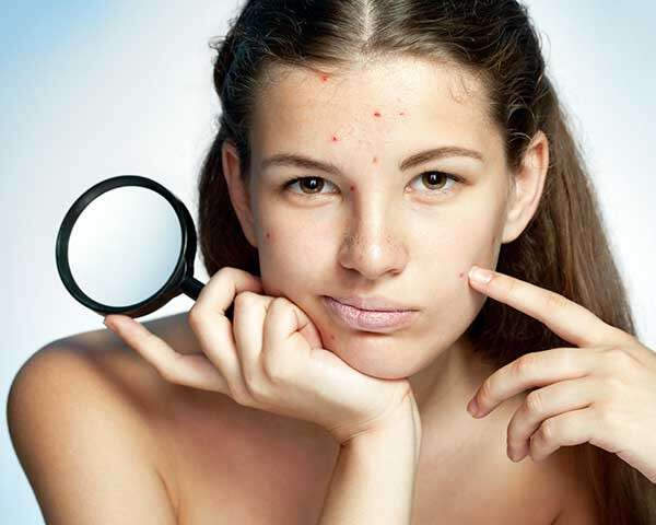 How To Remove Pimple Marks Effective Ways Femina In