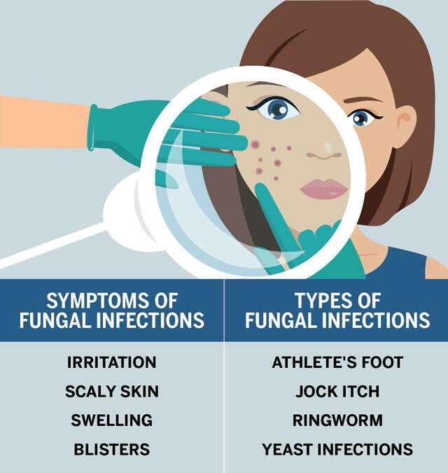 Fungal Infection Infographic