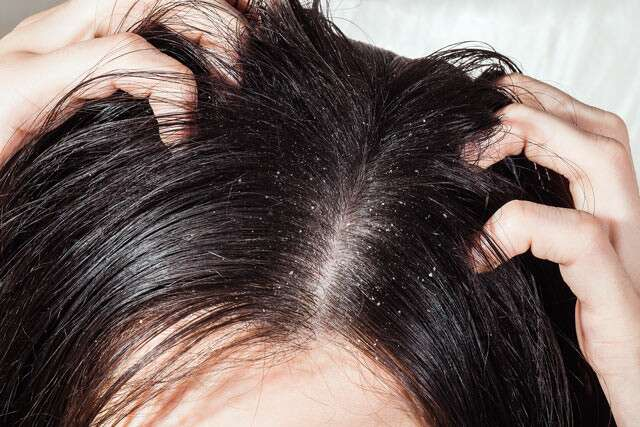 Neem Oil Helps With Dandruff And Itchiness