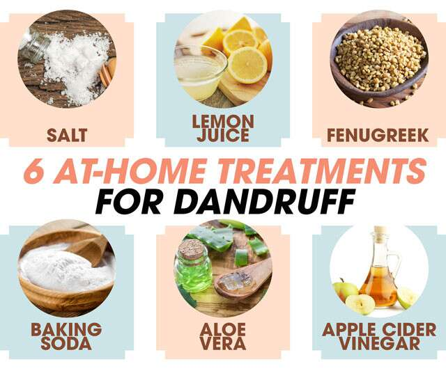 At-Home Treatments For Dandruff Infographic