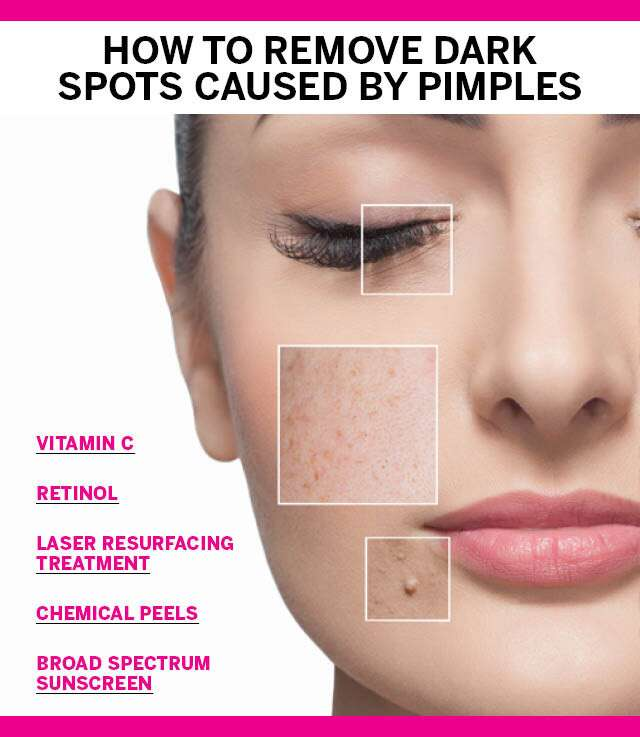 How To Remove Dark Spots Caused By Pimples Femina In