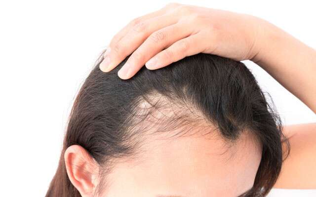 The most common causes of hair loss