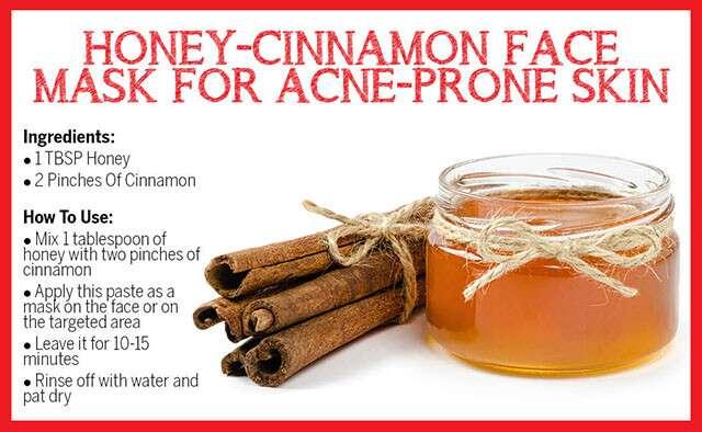 Honey-Cinnamon Face Mask for Acne-Prone Skin Infographic
