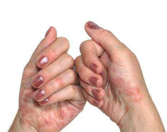 How you can keep psoriasis away