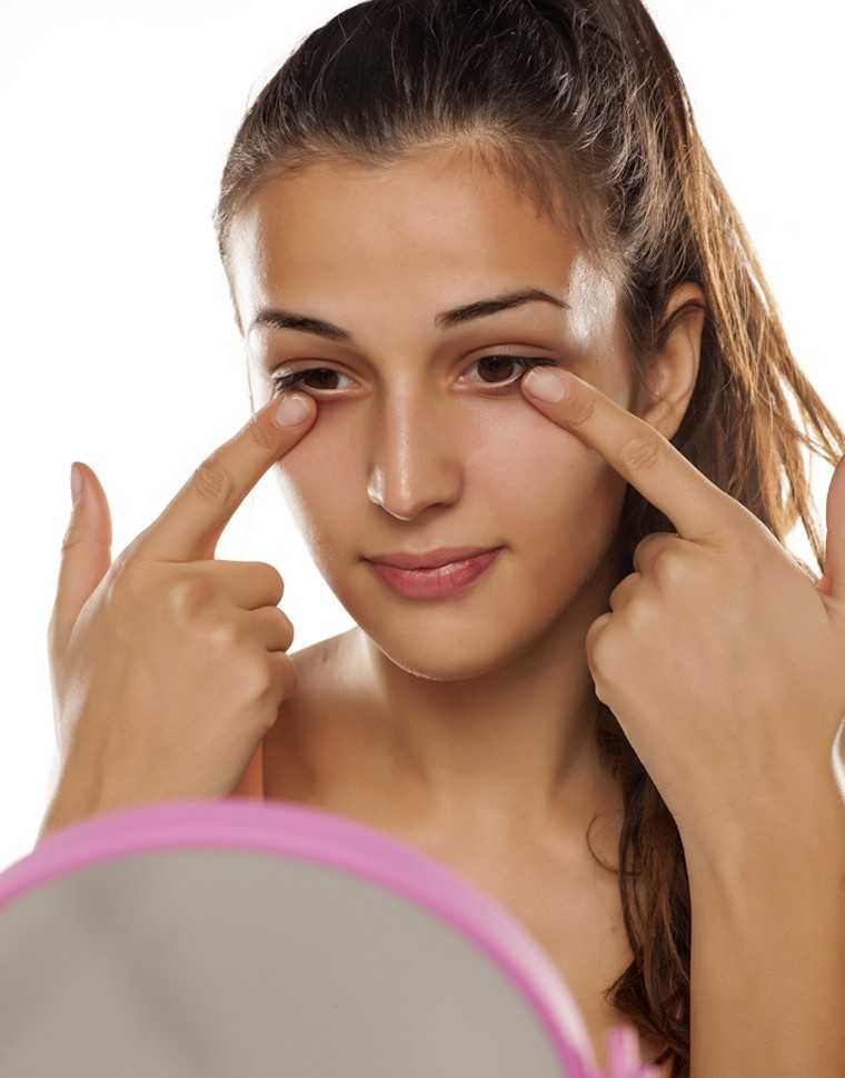 Under-eye woes