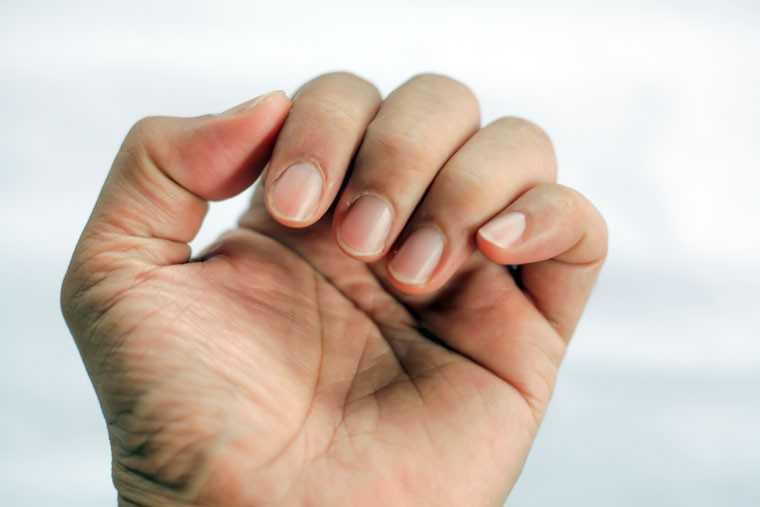 nails brittle