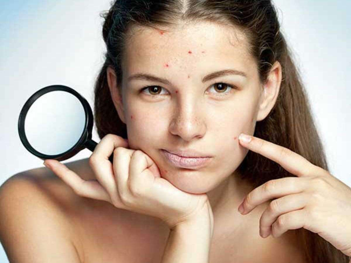 How To Remove Pimple Marks Effective Ways  Femina.in